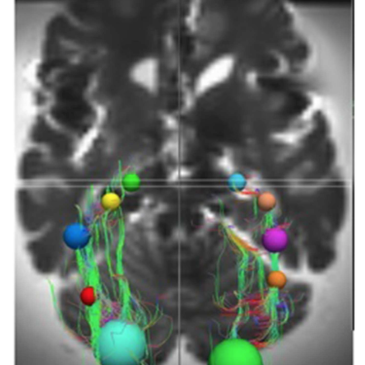 Preservation of the optic radiations based on comparative analysis of diffusion tensor imaging tractography and anatomical dissection