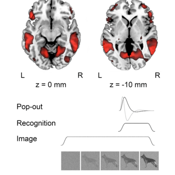 Lateral and Medial Ventral Occipitotemporal Regions Interact During the Recognition of Images Revealed from Noise