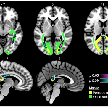 Neurodegeneration beyond the primary visual pathways in a population with a high incidence of normal-pressure glaucoma
