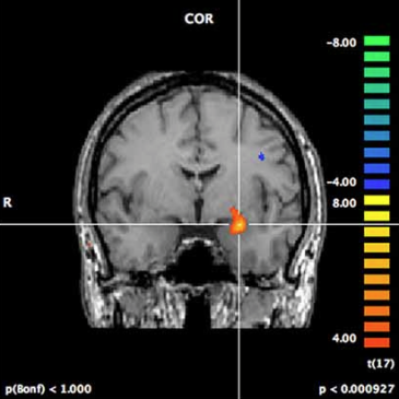 Amygdala guides feature-based attention